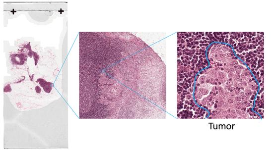 百度发布全新肿瘤识别AI算法,肿瘤识别准确率超医生!